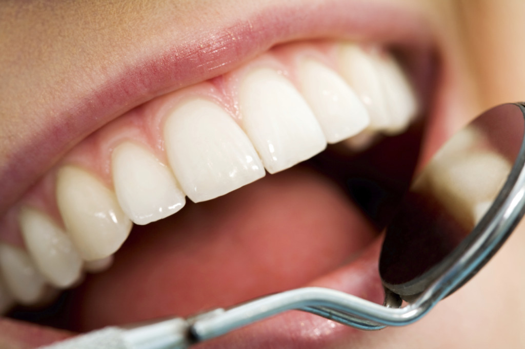 Close-up of patient's open mouth before oral checkup with mirror near by